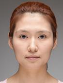 韩国iWell爱我整容外科-在韩国爱我整形医院做了颧骨和隆鼻,变成混血脸