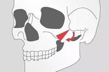 颧骨整形的三种方式,你都了解吗?