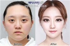 韩国face-line整形医院李真秀的脸型案例