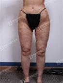 韩国女神整形医院-在韩国女神整形做完腿部吸脂修复后的效果
