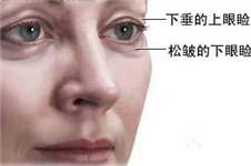 韩国首尔眼部去皱手术多少钱,哪个方法好?