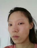 在新帝瑞娜做眼修复+隆鼻+下颌角整形后的效果!