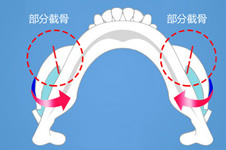 颧骨缩小都有哪些手术方式?