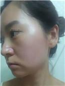韩国巴诺巴奇激光去红血丝治疗全过程