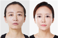韩国的脸部埋线提拉有副作用吗?