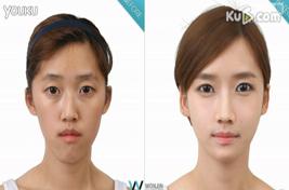 韩国双鄂整形案例,男神女神的蜕变
