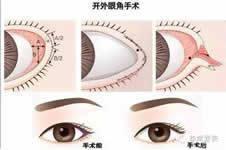 开眼角效果好不好?有几种手术方法?