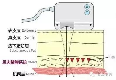 韩国Doublo超声刀作用原理