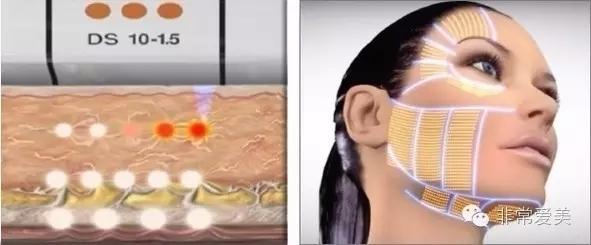 美国Ultherapy超声刀可作用的面部区域