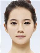 真人分享:我在韓國ID醫院矯正面部不對稱,歪下巴經過!
