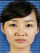 埋线法双眼皮+开内眼角术前术后对比