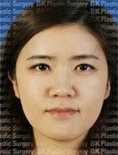 韩国bk医院眼部整形切开法+开内眼角术前术后对比