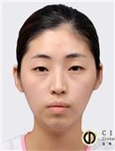 面部轮廓对比图