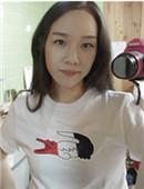 在韩国多娜做了发际线矫正 前后变化真的好大