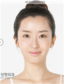 高兰得整形外科-面部轮廓对比案例