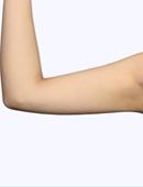 手臂吸脂对比案例