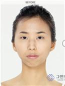 面部轮廓对比案例