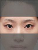 双眼皮术前术后对比案例图