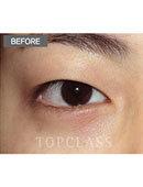 韩国顶级整形-自然流畅法双眼皮术前术后对比图