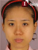 韩国ITEM整形医院-面部轮廓对比案例