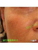 韩国美来整形医院-面部除皱前后对比照片