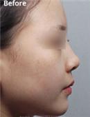 韩国MVP整形外科朝天鼻整形对比案例