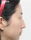 鼻整形对比案例