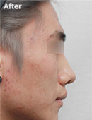 韩国mvp整形外科鼻整形对比案例