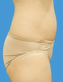 韩国江南三星整形外科-腹部吸脂对比案例