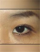 韩国枓翰-眼部修复对比案例