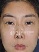 鼻修复对比案例