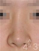 韩国4月31日整形医院-鼻修复对比案例