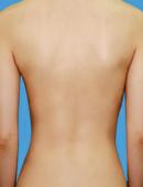 背部吸脂对比案例