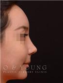 韩国onyoung整形外科-鼻部整形对比图