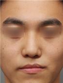 唇裂修复对比案例