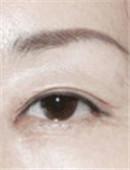 眼部修复对比案例_术后