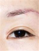 眼部修复对比案例_术前