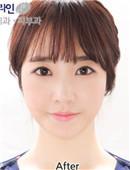 韓國FACE-LINE整形-面部輪廓對比案例