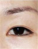 眼部修复对比案例