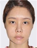 鼻部修复对比案例_术前