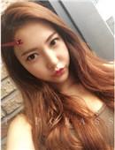 韩国顶级整形-韩国topclass隆胸+鼻整形真实整形经历记录