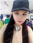 韩国女神整形医院面部轮廓整形案例恢复过程_术后