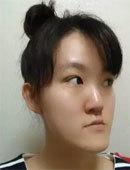 在韩国巴诺巴奇做完双鄂+眼+鼻子整形后的惊人效果!_术前