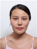 韩国女神整形医院面部轮廓整形案例恢复过程_术前