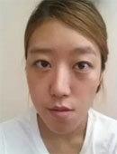 在必妩整形医院做完面部轮廓+眼鼻综合手术后的我