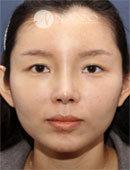 韩国NANO整形外科鼻修复真实案例图