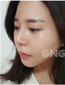 韩国GNG整形医院隆鼻案例恢复全过程