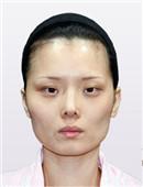 韩国博朗温整形外科金兑奎面部轮廓案例