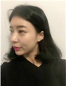 韩国女神整形医院-韩国女神整形案例面部脂肪填充案例恢复全过程