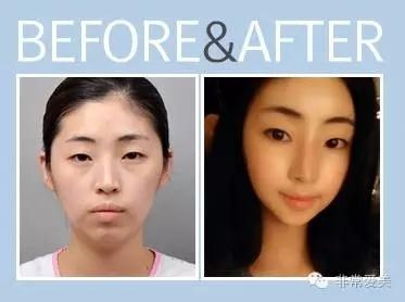 灰姑娘整形外科面部轮廓案例对比图